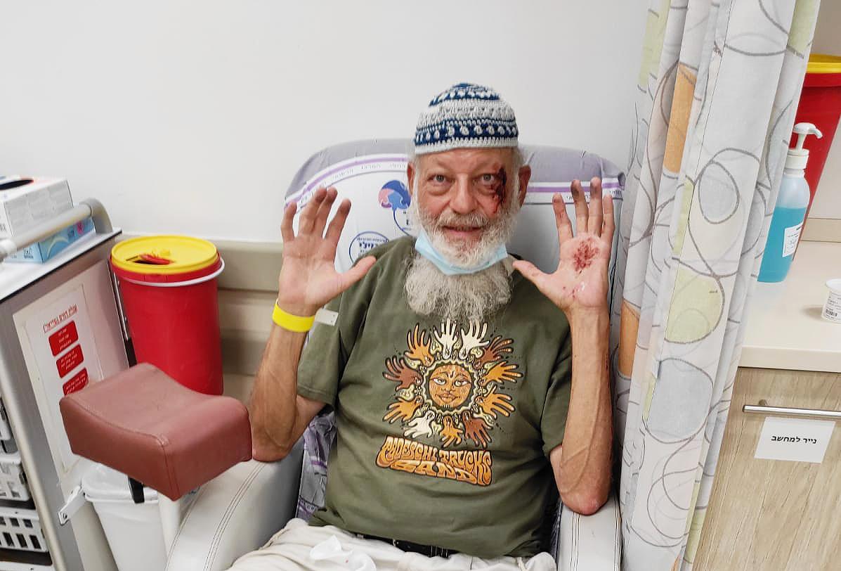 injured Israeli man